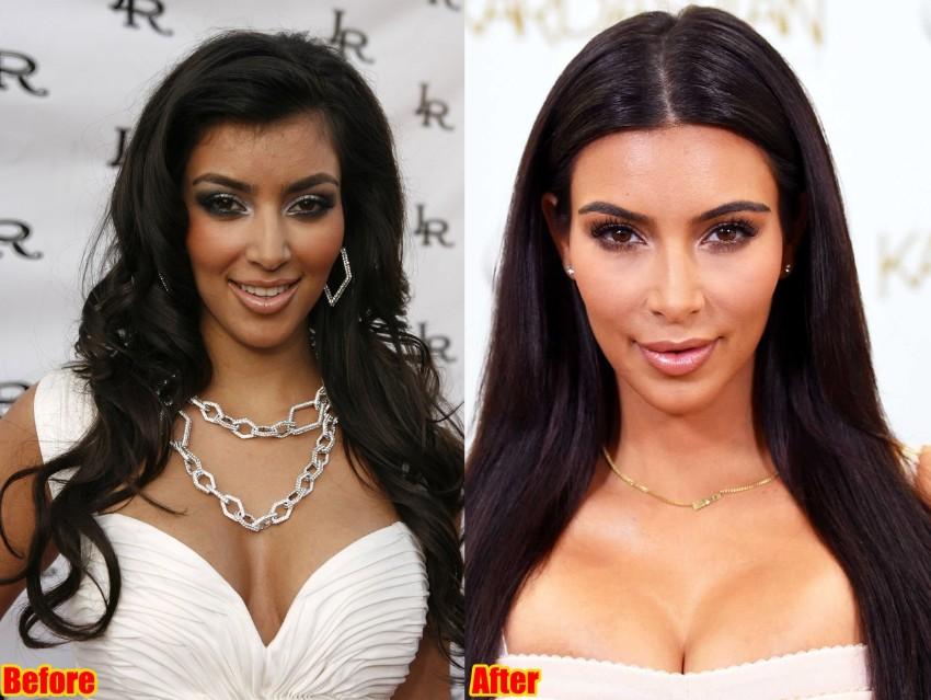 Celebrity Plastic surgeries